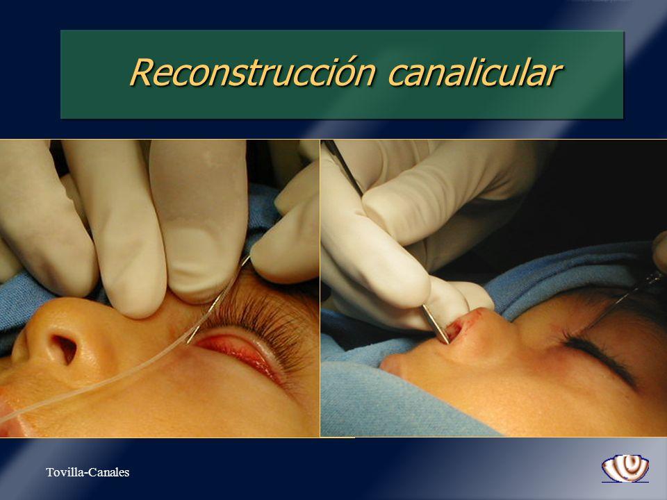 Reconstrucción canalicular
