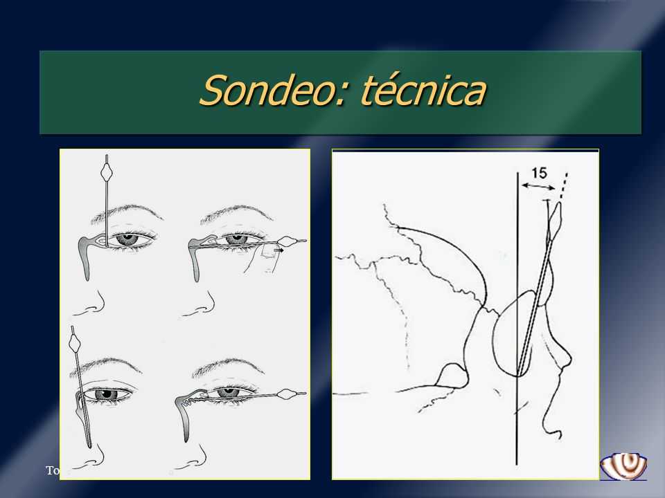 Sondeo: técnica Tovilla-Canales