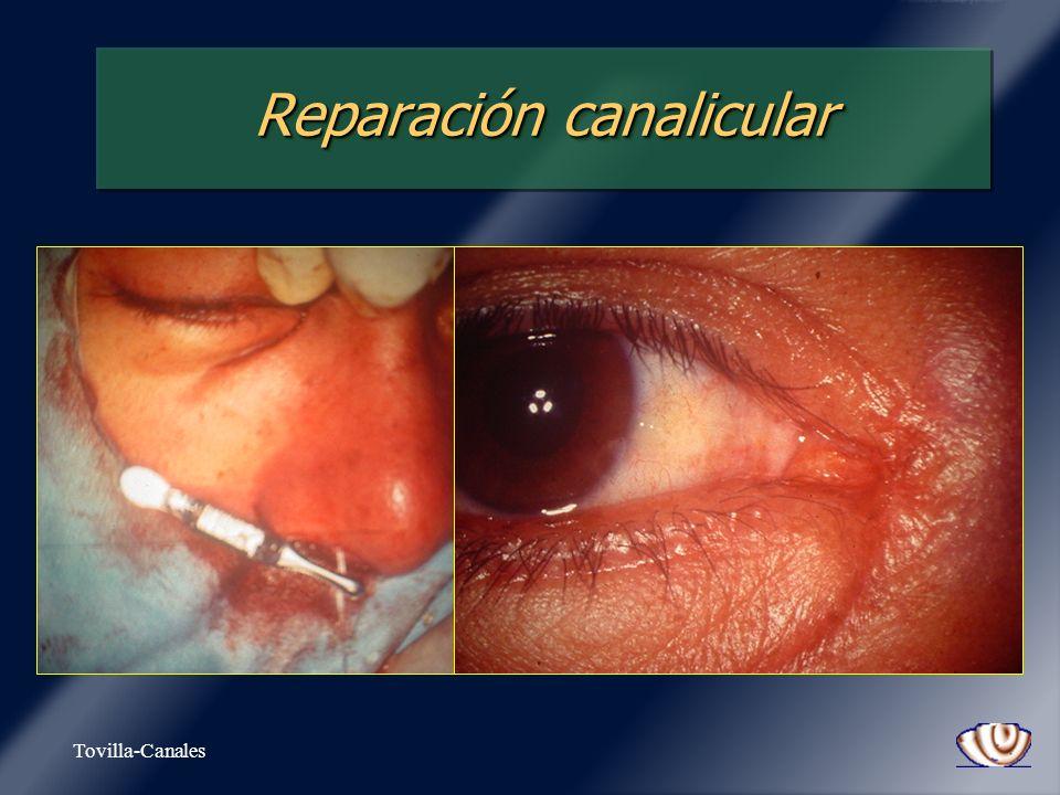 Reparación canalicular