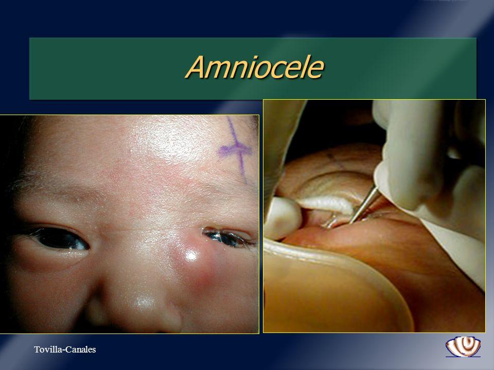 Amniocele Tovilla-Canales