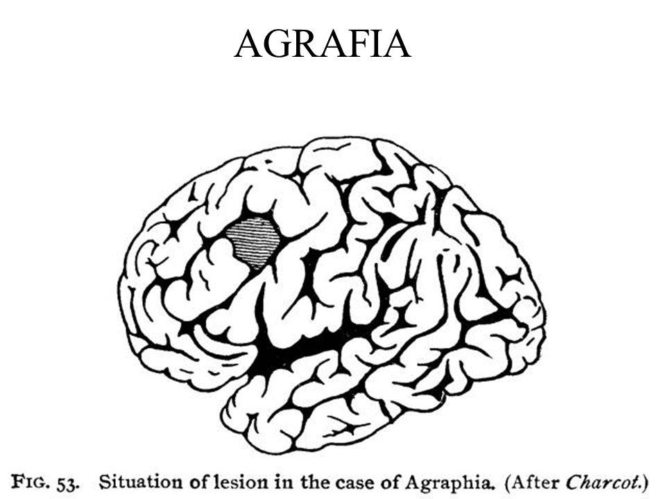 AGRAFIA