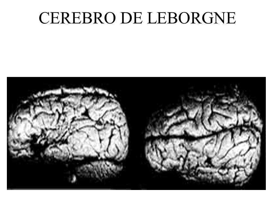 CEREBRO DE LEBORGNE