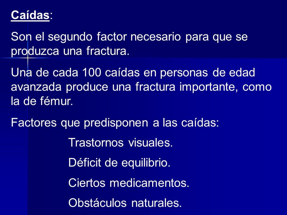 Caídas: Son el segundo factor necesario para que se produzca una fractura.