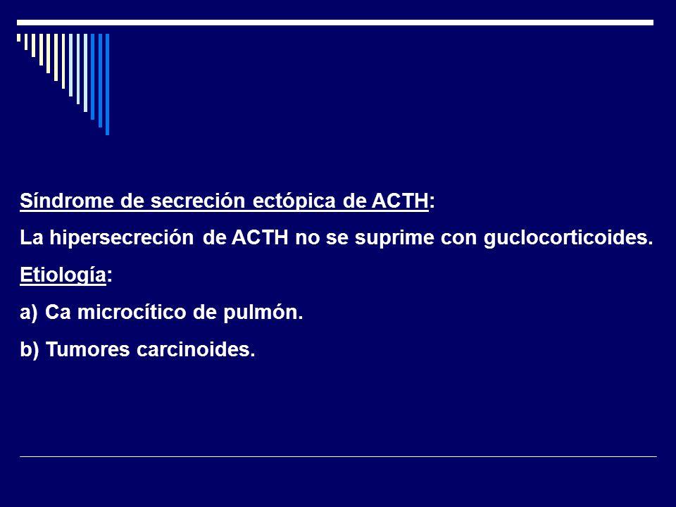 Síndrome de secreción ectópica de ACTH: