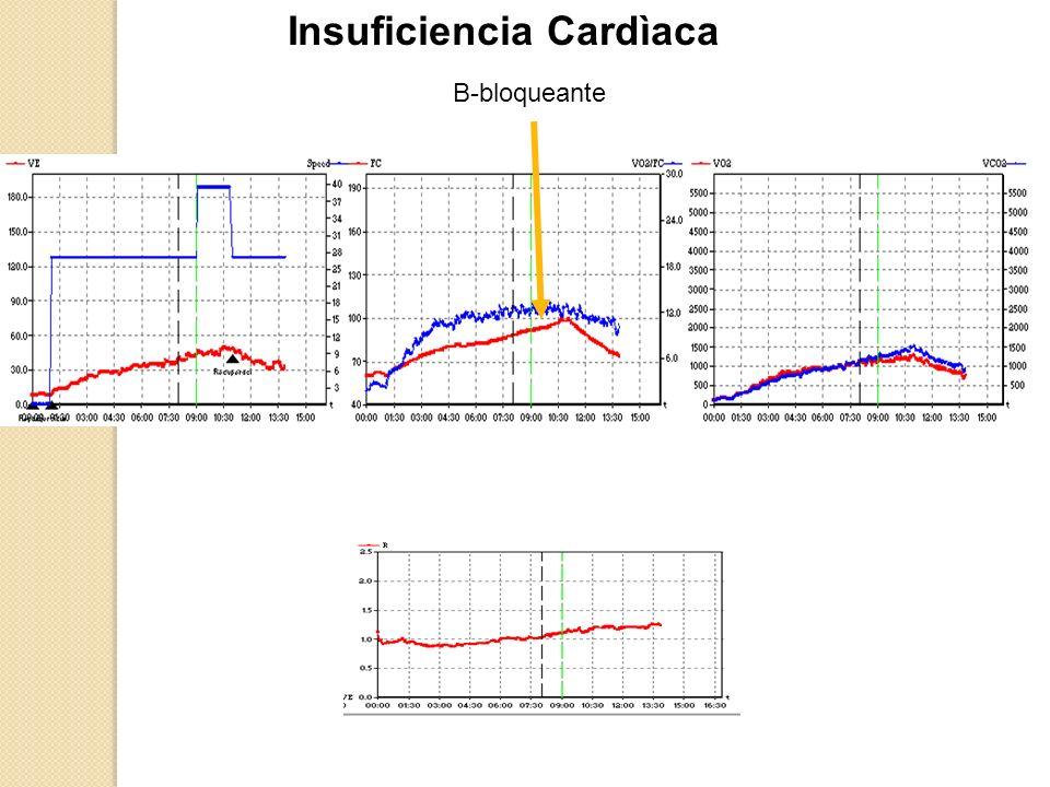 Insuficiencia Cardìaca