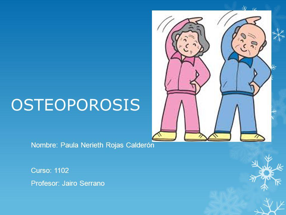 OSTEOPOROSIS Nombre: Paula Nerieth Rojas Calderón Curso: 1102