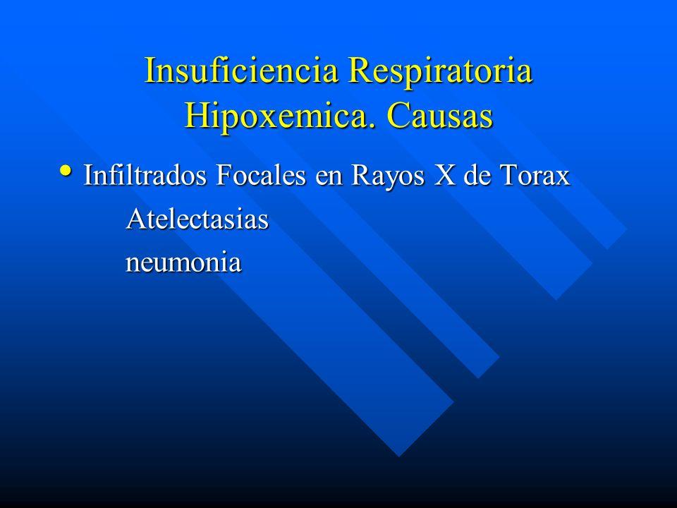 Insuficiencia Respiratoria Hipoxemica. Causas
