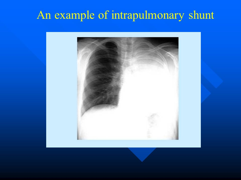 An example of intrapulmonary shunt