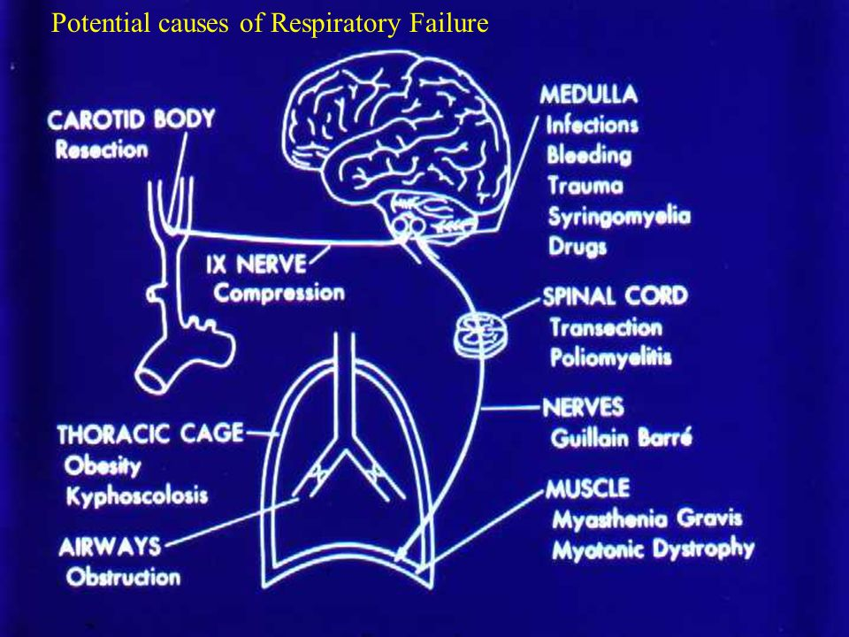 Potential causes of Respiratory Failure