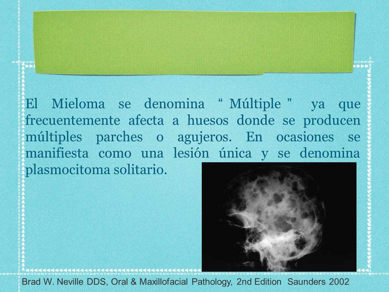 El Mieloma se denomina Múltiple ya que frecuentemente afecta a huesos donde se producen múltiples parches o agujeros. En ocasiones se manifiesta como una lesión única y se denomina plasmocitoma solitario.