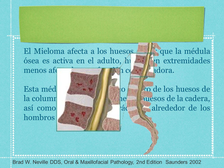 El Mieloma afecta a los huesos en los que la médula ósea es activa en el adulto, huesos en extremidades menos afectados por función conservadora.