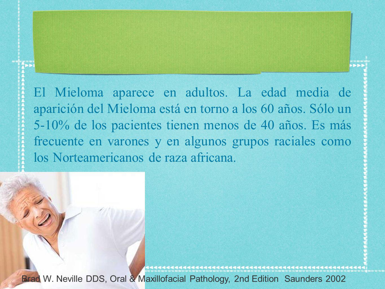 El Mieloma aparece en adultos