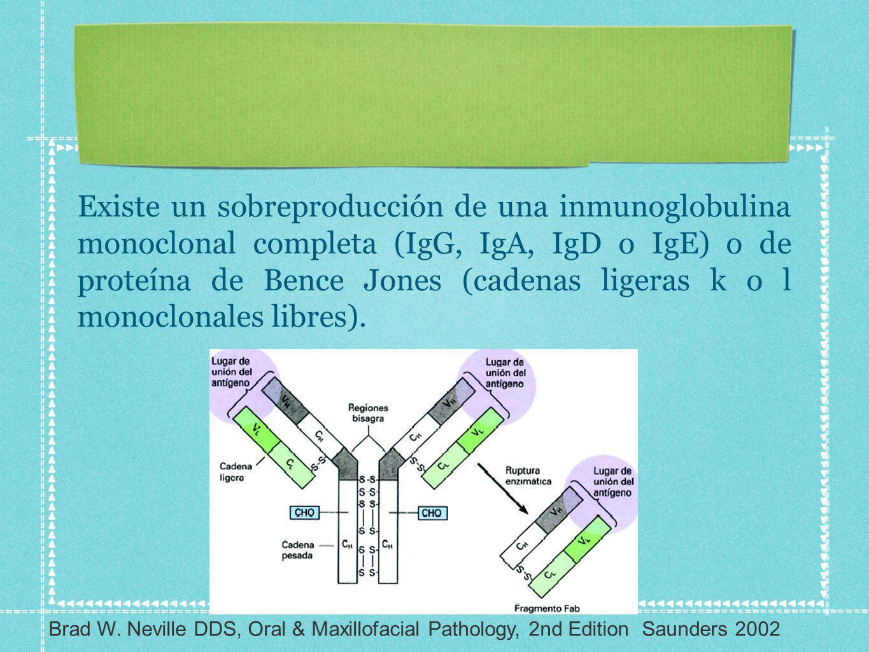 Existe un sobreproducción de una inmunoglobulina monoclonal completa (IgG, IgA, IgD o IgE) o de proteína de Bence Jones (cadenas ligeras k o l monoclonales libres).