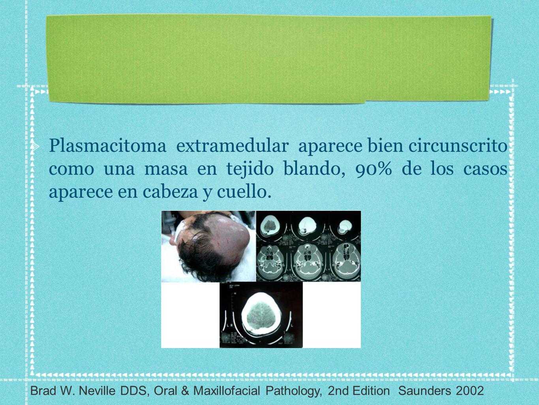 Plasmacitoma extramedular aparece bien circunscrito como una masa en tejido blando, 90% de los casos aparece en cabeza y cuello.