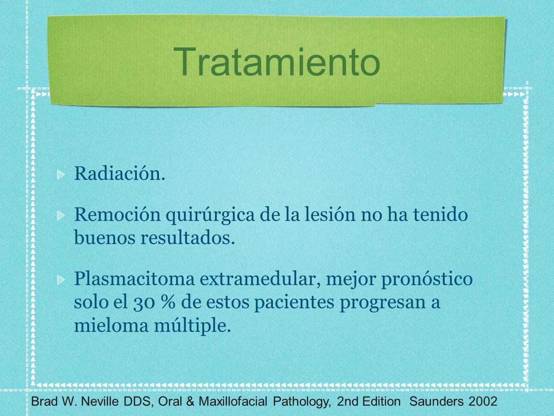 Tratamiento Radiación.
