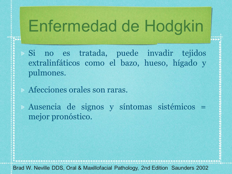 Enfermedad de Hodgkin Si no es tratada, puede invadir tejidos extralinfáticos como el bazo, hueso, hígado y pulmones.