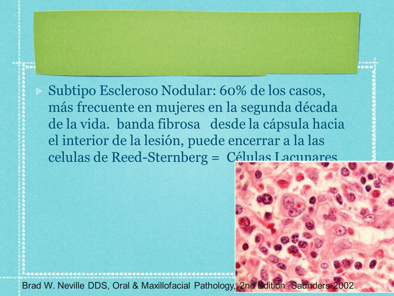 Subtipo Escleroso Nodular: 60% de los casos, más frecuente en mujeres en la segunda década de la vida. banda fibrosa desde la cápsula hacia el interior de la lesión, puede encerrar a la las celulas de Reed-Sternberg = Células Lacunares