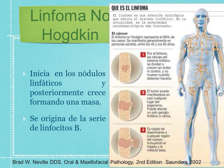 Linfoma No Hogdkin Inicia en los nódulos linfáticos y posteriormente crece formando una masa. Se origina de la serie de linfocitos B.