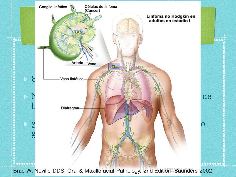 85 % de neoplasias de tejido linfoide.