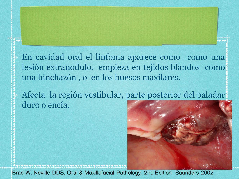 Afecta la región vestibular, parte posterior del paladar duro o encía.