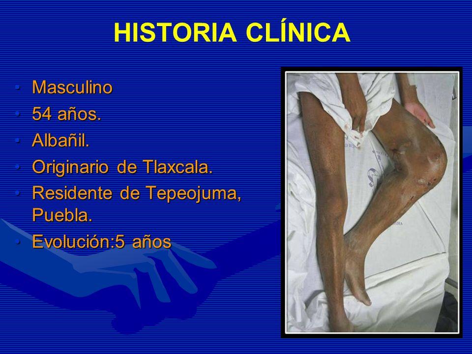 HISTORIA CLÍNICA Masculino 54 años. Albañil. Originario de Tlaxcala.