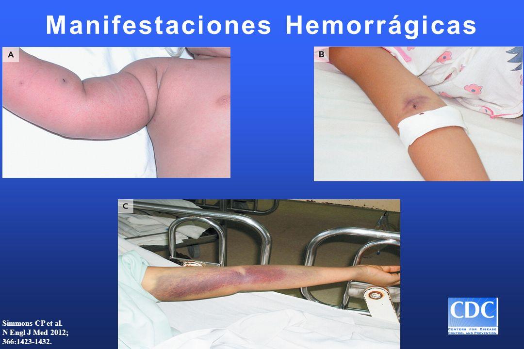 Manifestaciones Hemorrágicas