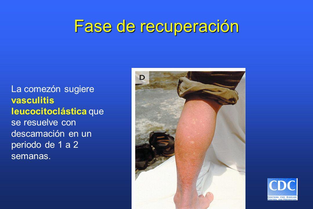 Fase de recuperación La comezón sugiere vasculitis leucocitoclástica que se resuelve con descamación en un periodo de 1 a 2 semanas.