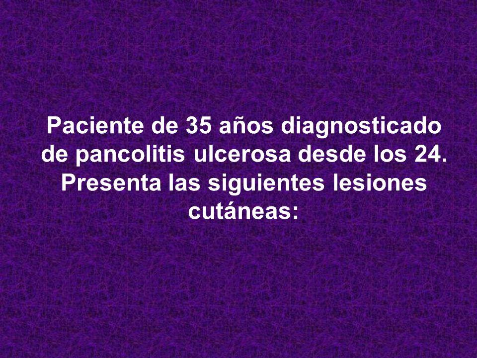 Paciente de 35 años diagnosticado de pancolitis ulcerosa desde los 24