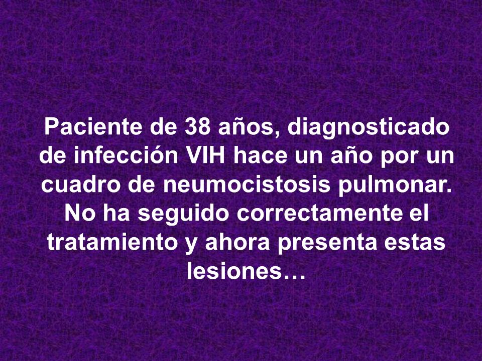 Paciente de 38 años, diagnosticado de infección VIH hace un año por un cuadro de neumocistosis pulmonar.