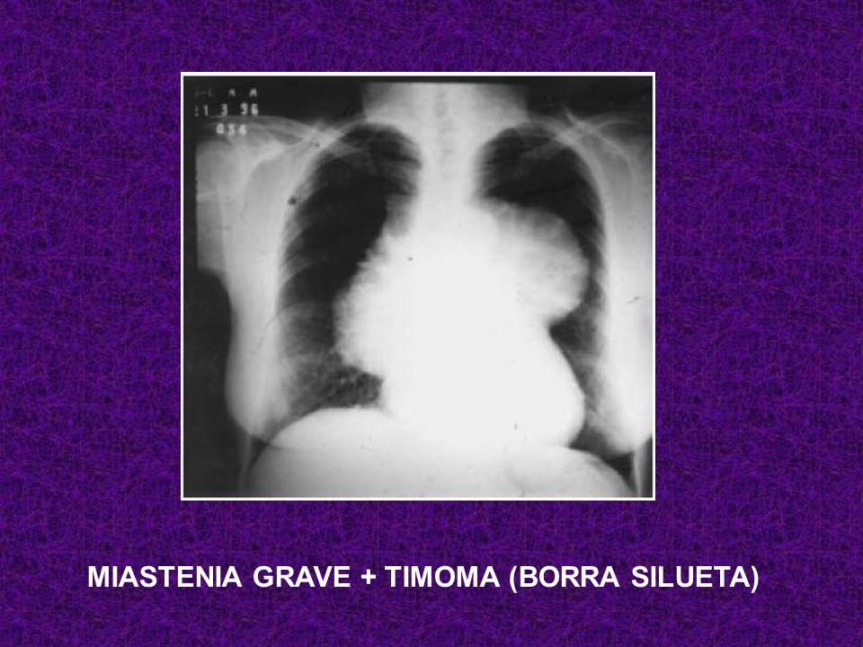 MIASTENIA GRAVE + TIMOMA (BORRA SILUETA)