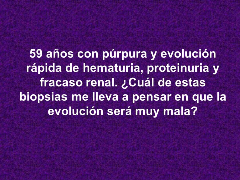 59 años con púrpura y evolución rápida de hematuria, proteinuria y fracaso renal.