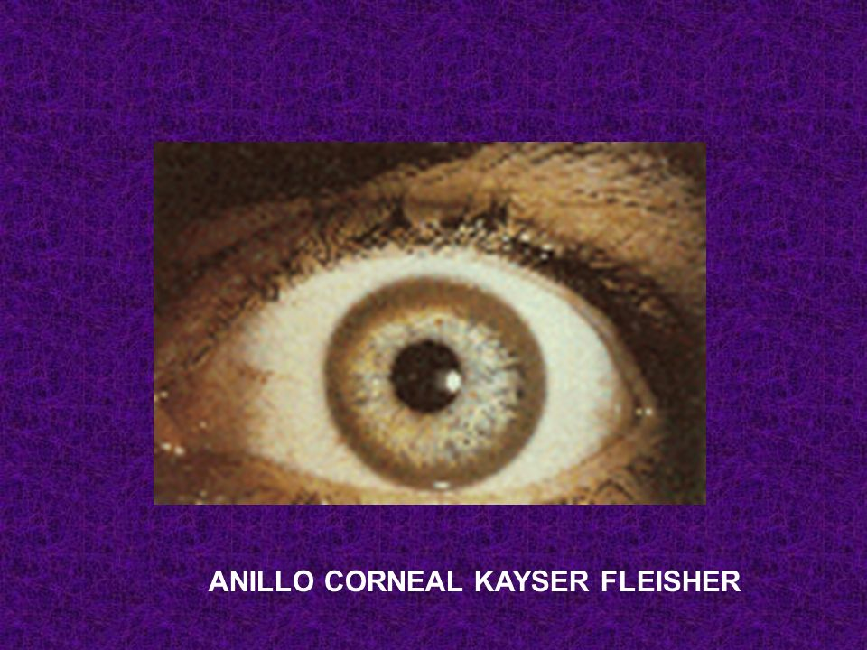 ANILLO CORNEAL KAYSER FLEISHER