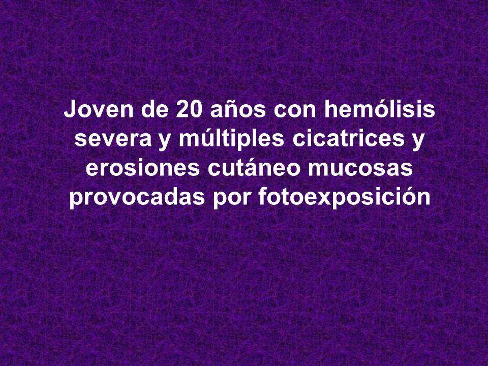 Joven de 20 años con hemólisis severa y múltiples cicatrices y erosiones cutáneo mucosas provocadas por fotoexposición