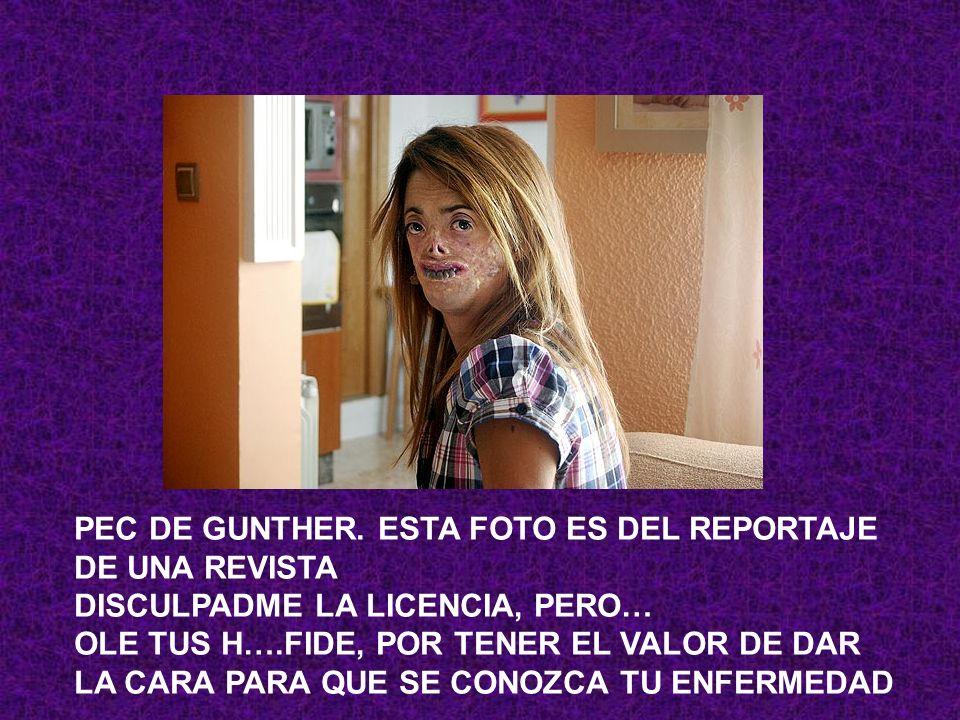 PEC DE GUNTHER. ESTA FOTO ES DEL REPORTAJE DE UNA REVISTA