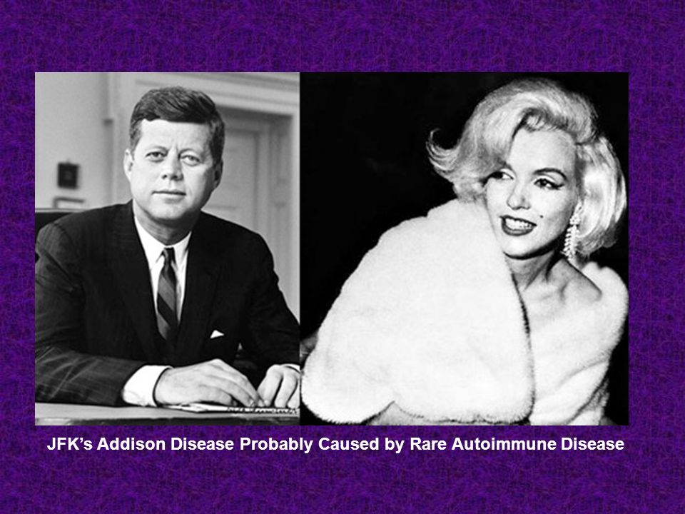 JFK's Addison Disease Probably Caused by Rare Autoimmune Disease