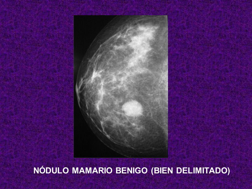 NÓDULO MAMARIO BENIGO (BIEN DELIMITADO)