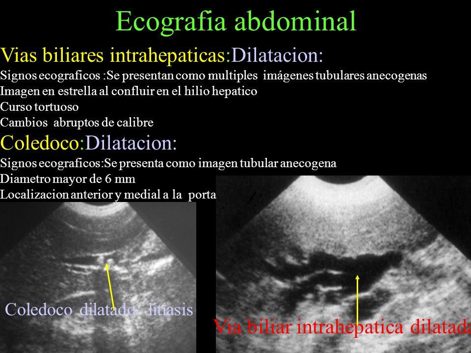 Ecografia abdominal Vias biliares intrahepaticas:Dilatacion:
