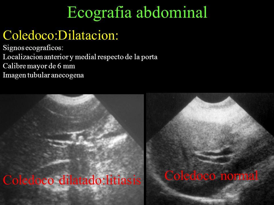 Ecografia abdominal Coledoco:Dilatacion: Coledoco normal