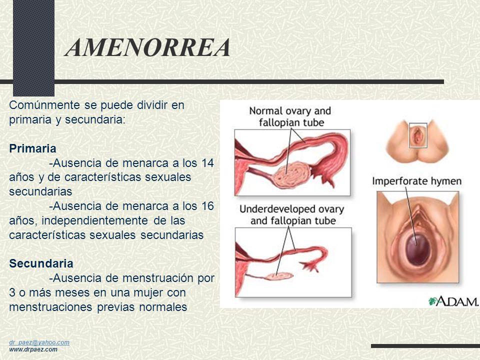 AMENORREA Comúnmente se puede dividir en primaria y secundaria: