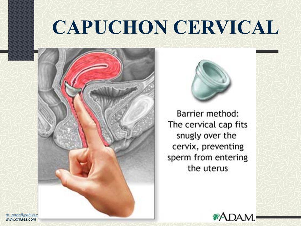 CAPUCHON CERVICAL