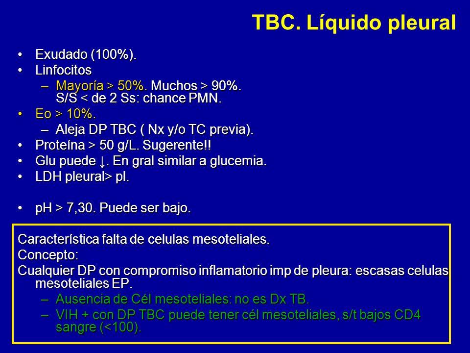 TBC. Líquido pleural Exudado (100%). Linfocitos