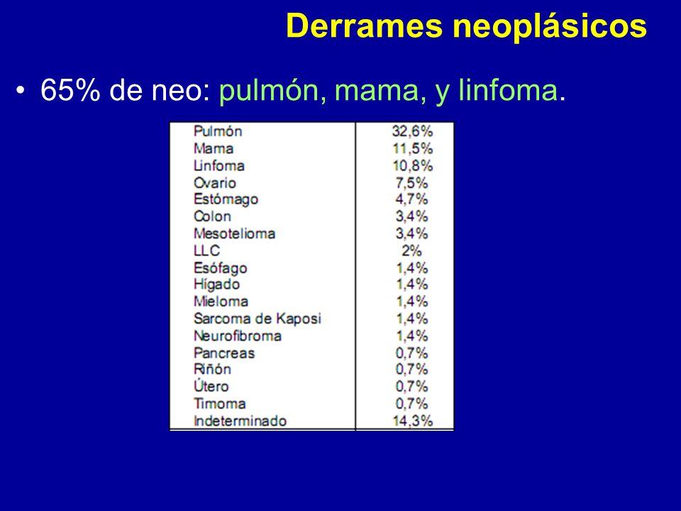 Derrames neoplásicos 65% de neo: pulmón, mama, y linfoma.