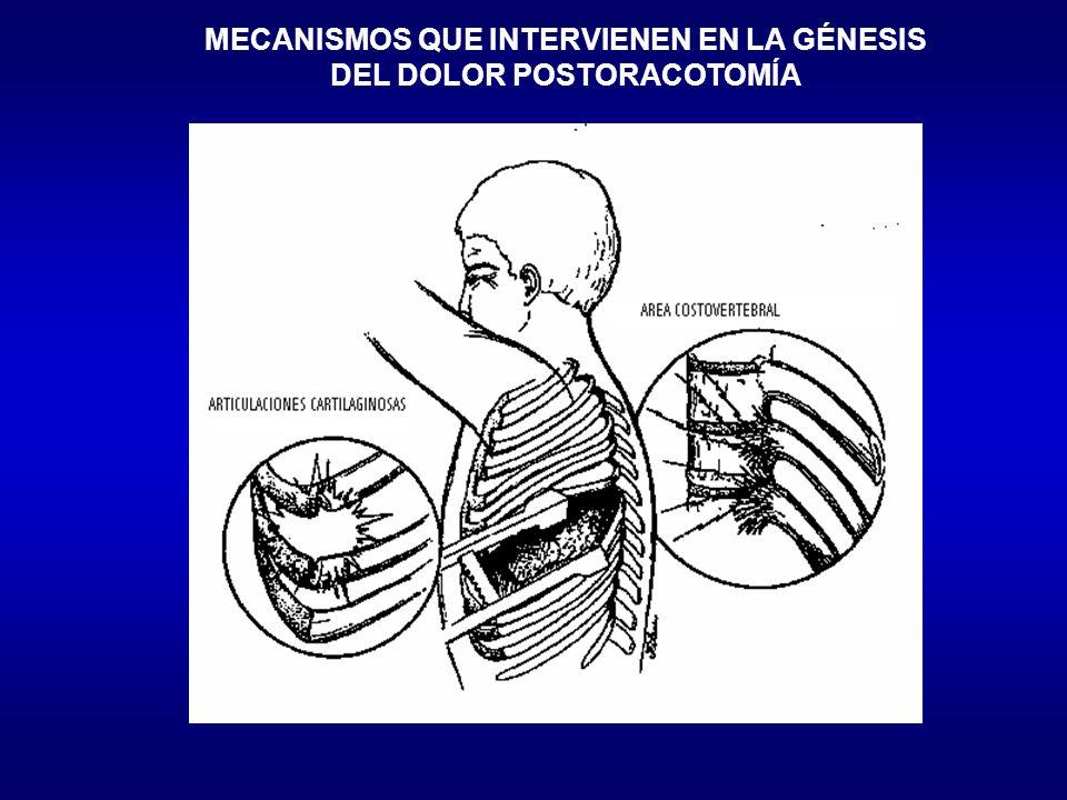 MECANISMOS QUE INTERVIENEN EN LA GÉNESIS DEL DOLOR POSTORACOTOMÍA