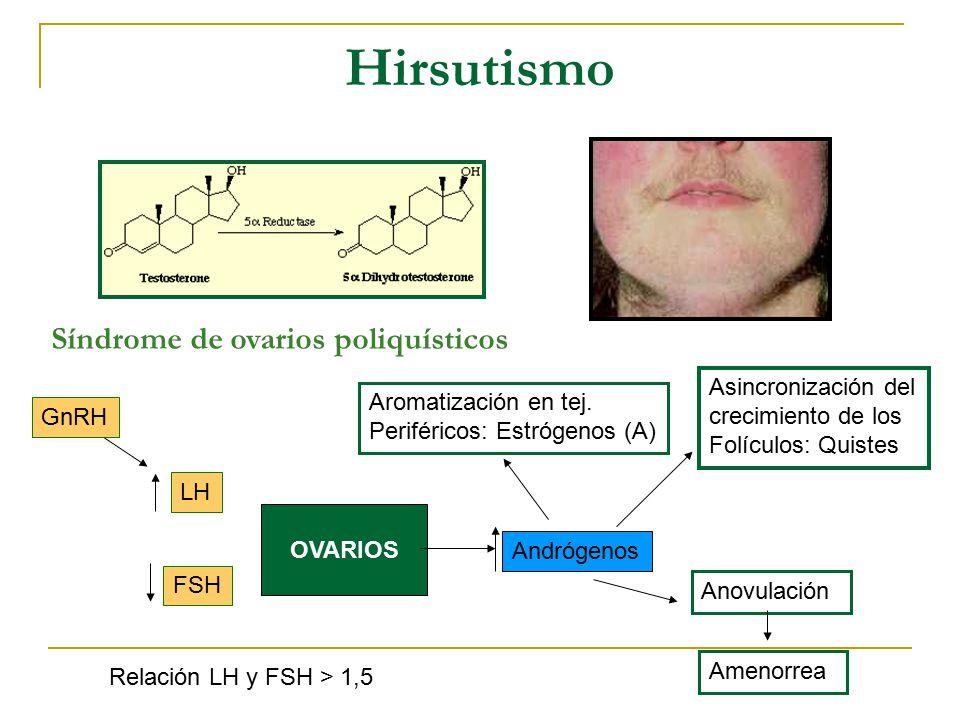 Hirsutismo Síndrome de ovarios poliquísticos Asincronización del