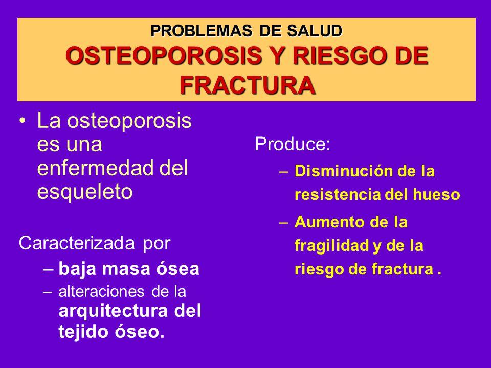 OSTEOPOROSIS Y RIESGO DE FRACTURA