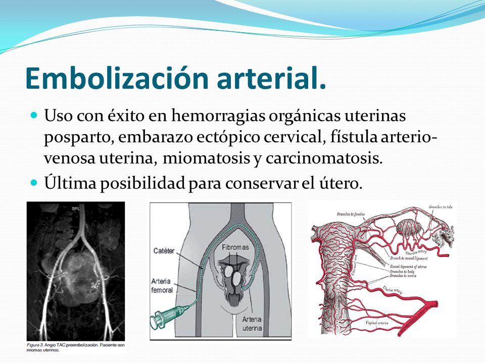 Embolización arterial.