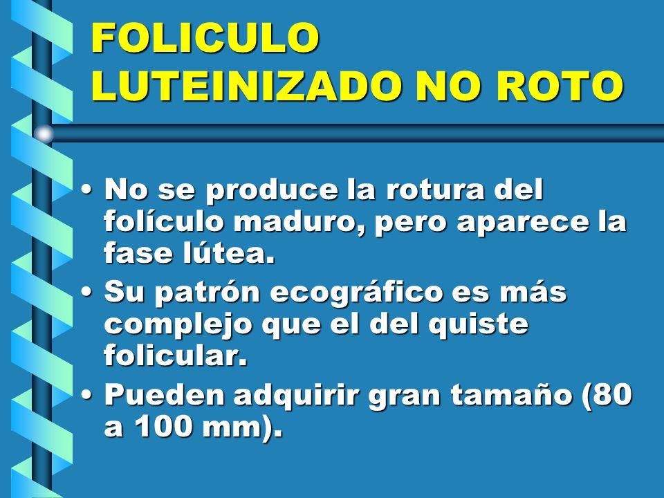 FOLICULO LUTEINIZADO NO ROTO