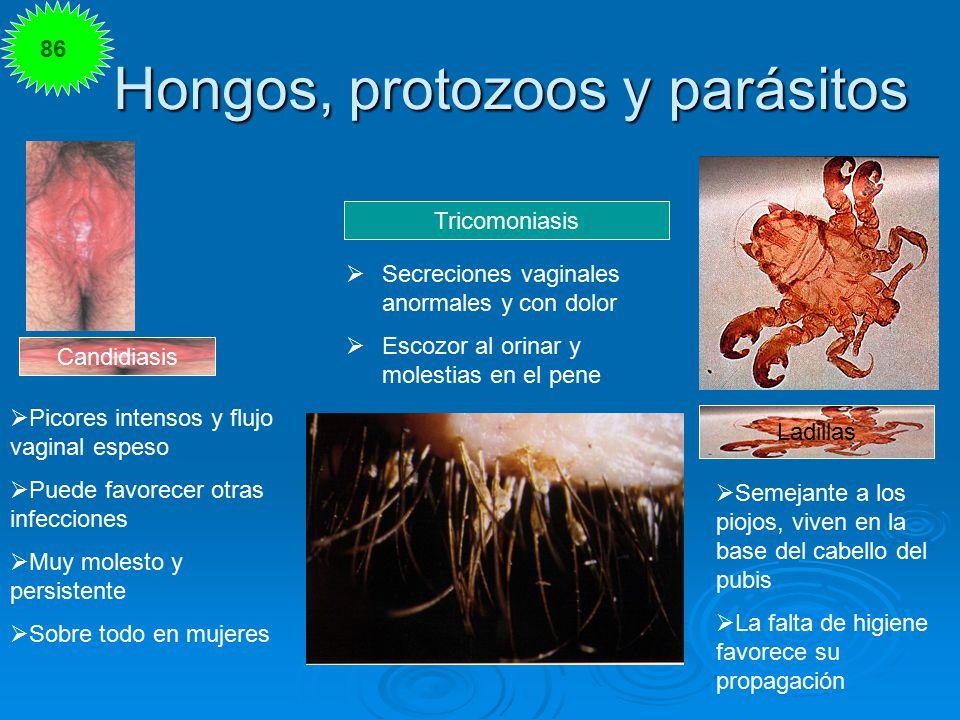 Hongos, protozoos y parásitos
