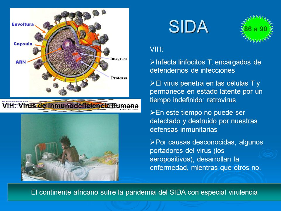 VIH: Virus de inmunodeficiencia humana