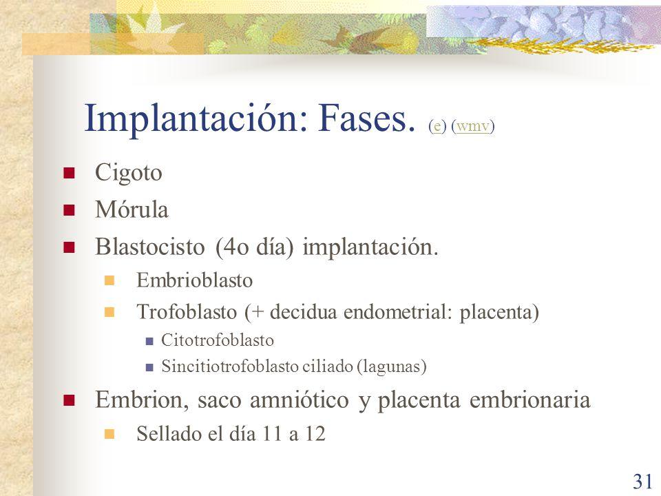 Implantación: Fases. (e) (wmv)